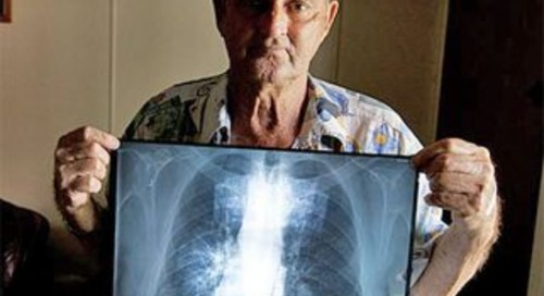 Industry urged to own-up after 19th black lung case confirmed